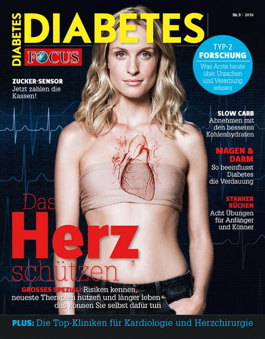 DIABETES - aktuelle Ausgabe 03/2016